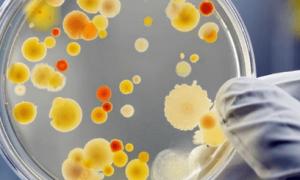 Пищевые отравления, инфекции и меры их предупреждения
